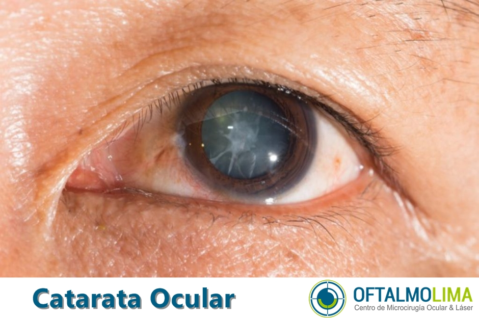 Catarata ocular: síntomas, causas y tratamiento