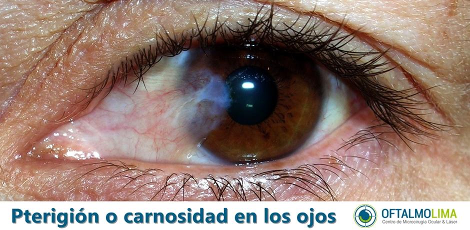 Pterigión o carnosidad en los ojos
