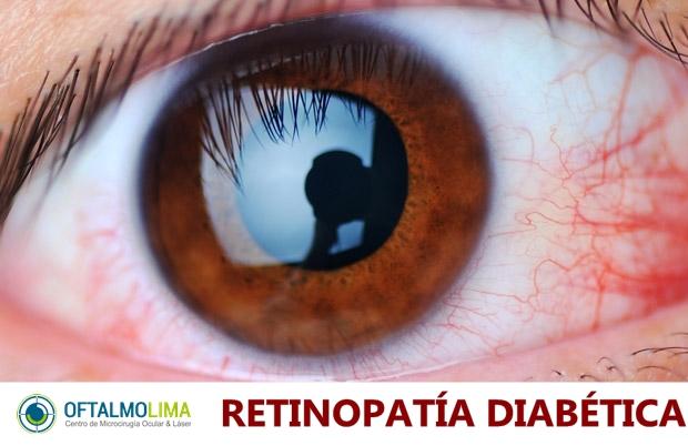 Retinopatía Diabética: causas, síntomas, prevención y tratamientos