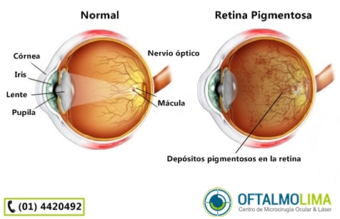 Retinitis Pigmentaria: causas, síntomas, diagnóstico y tratamiento