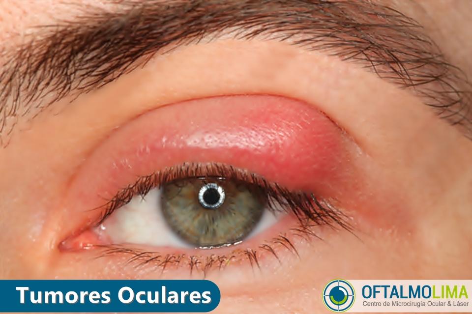 Tumores oculares: Palpebrales y Orbitrarios