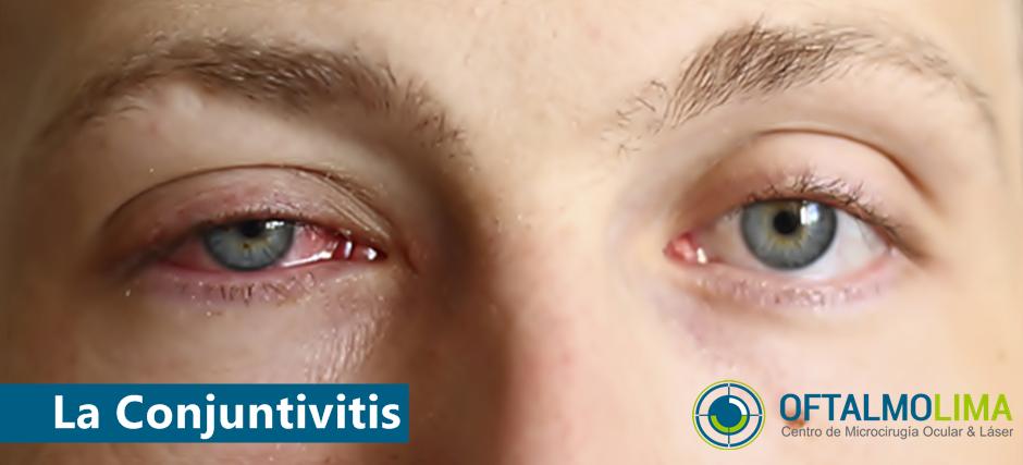 Conjuntivitis: síntomas, causas, prevención, tratamiento.