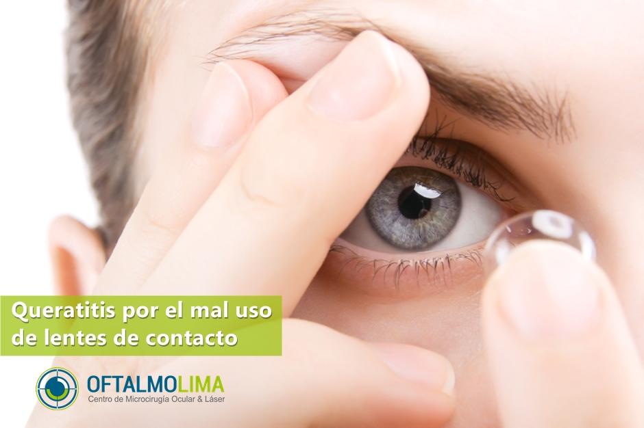 def0dd5c9ea8d Queratitis por el mal uso de lentes de contacto - Oftalmolima