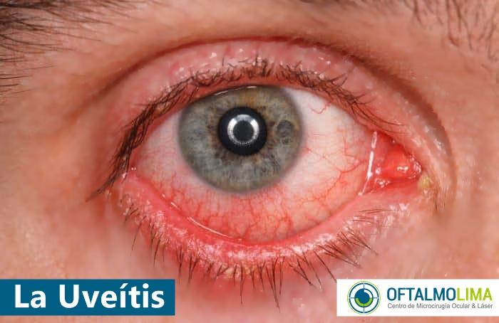 Uveítis: tipos, causas, síntomas, tratamiento