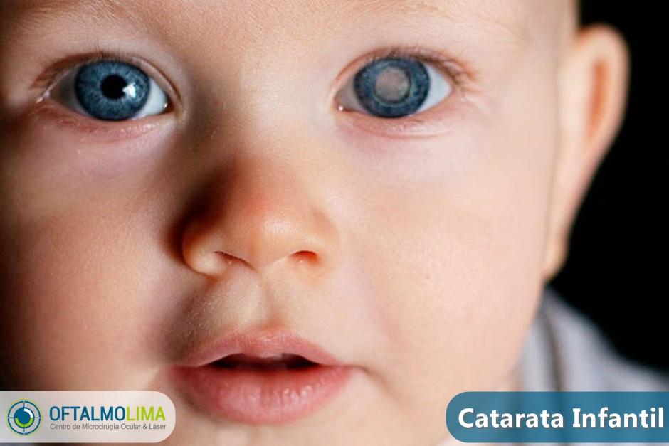 Catarata Infantil: causas, síntomas, tratamiento y cirugía