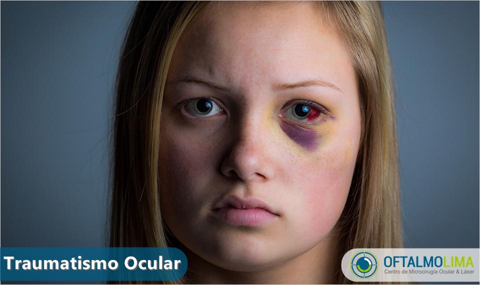 presion ocular sintomas causas y tratamiento