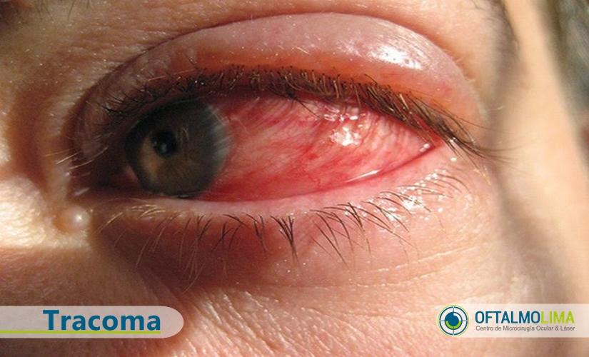 Tracoma: principal causante de ceguera a nivel mundial