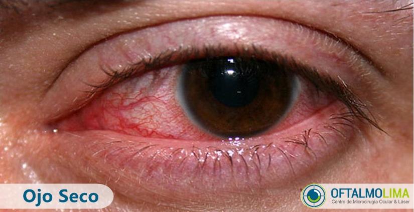 Ojo seco: causas, síntomas y tratamiento