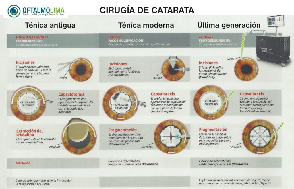 CIRUGÍA DE CATARATA
