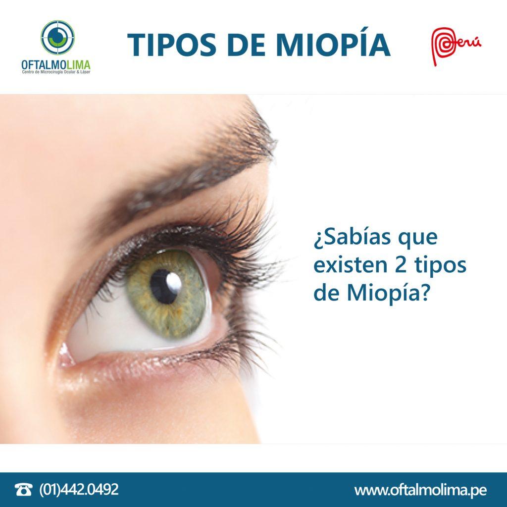 TIPOS DE MIOPÍA