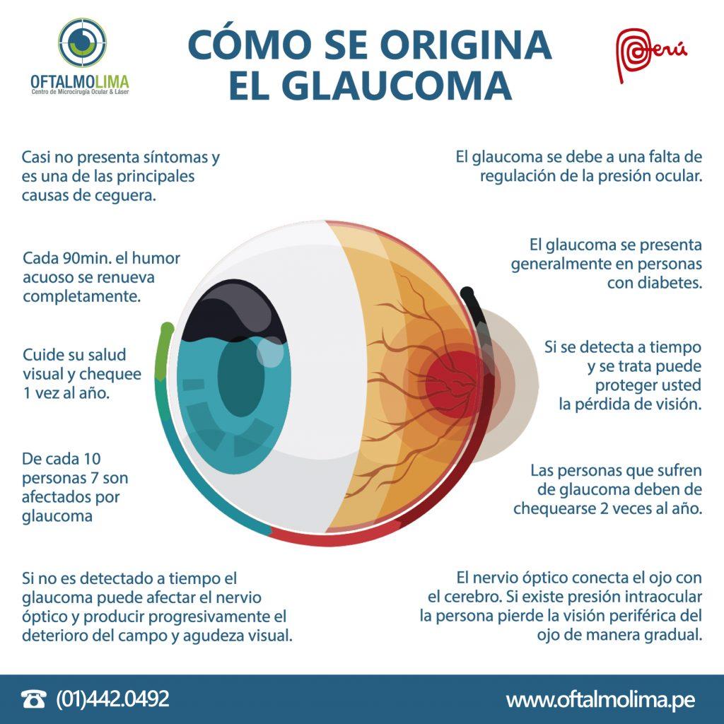 CÓMO SE ORIGINA EL GLAUCOMA