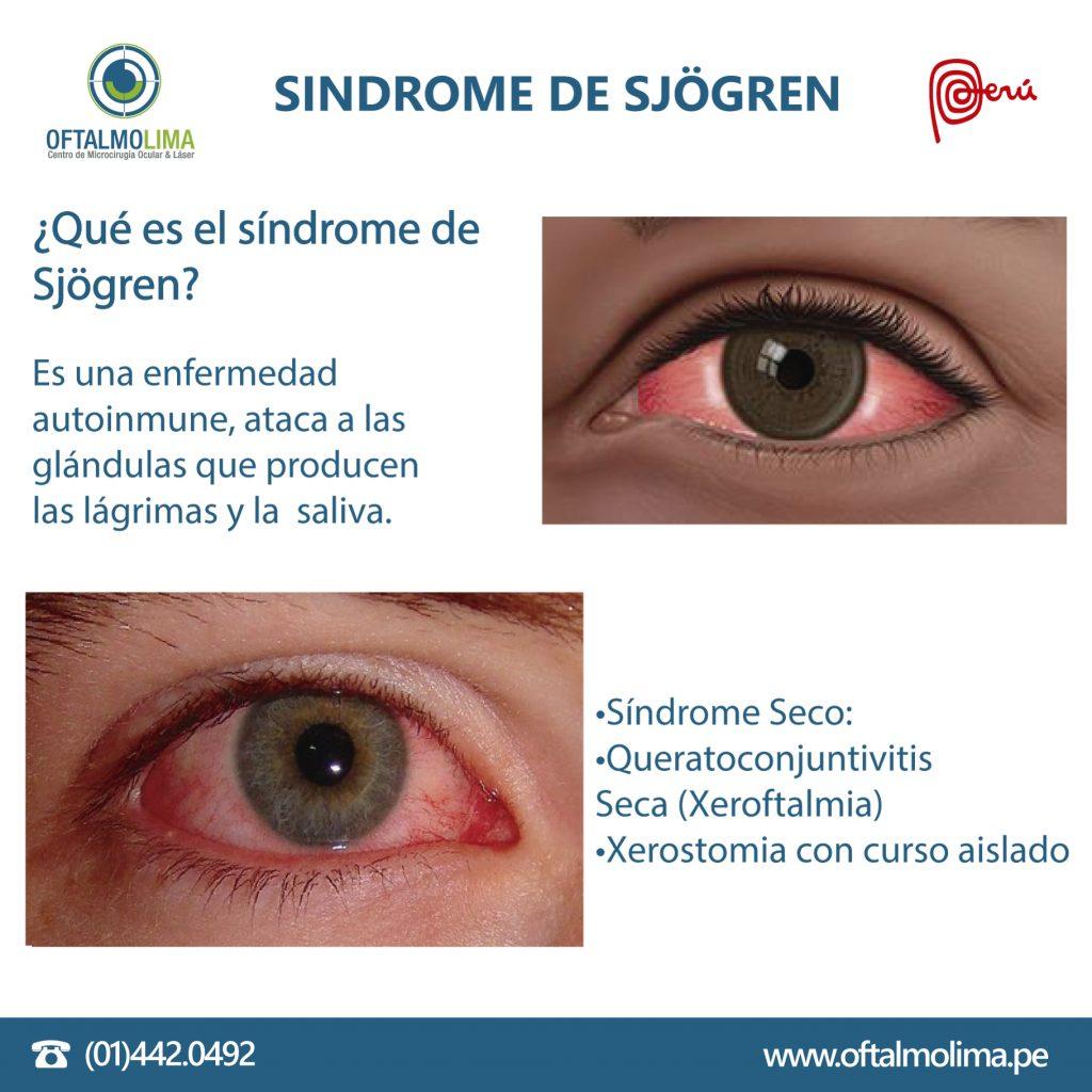 El síndrome de Sjögren - Oftalmolima