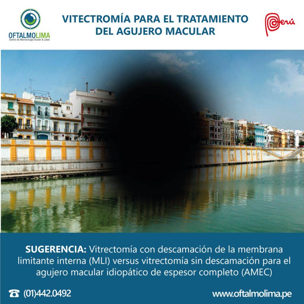 VITECTROMÍA PARA EL TRATAMIENTO DEL AGUJERO MACULAR