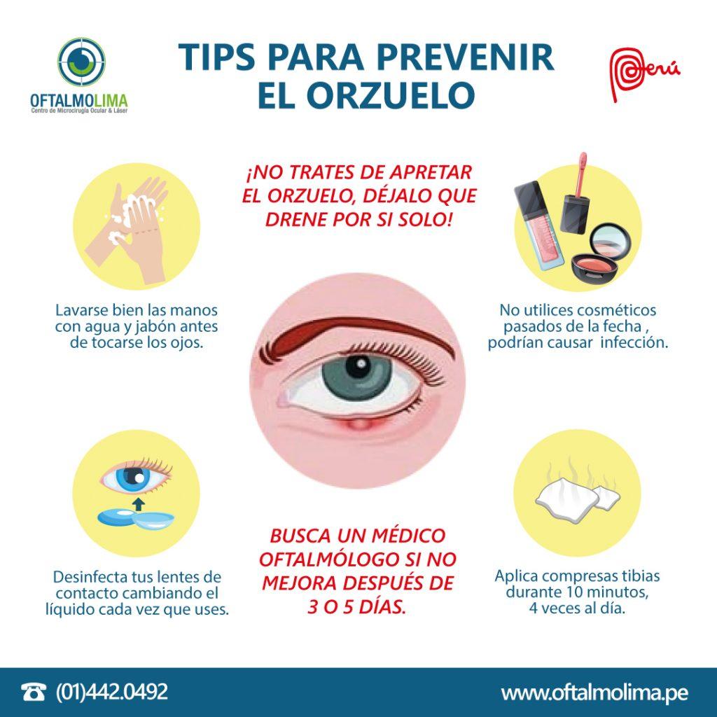 TIPS PARA PREVENIR EL ORZUELO