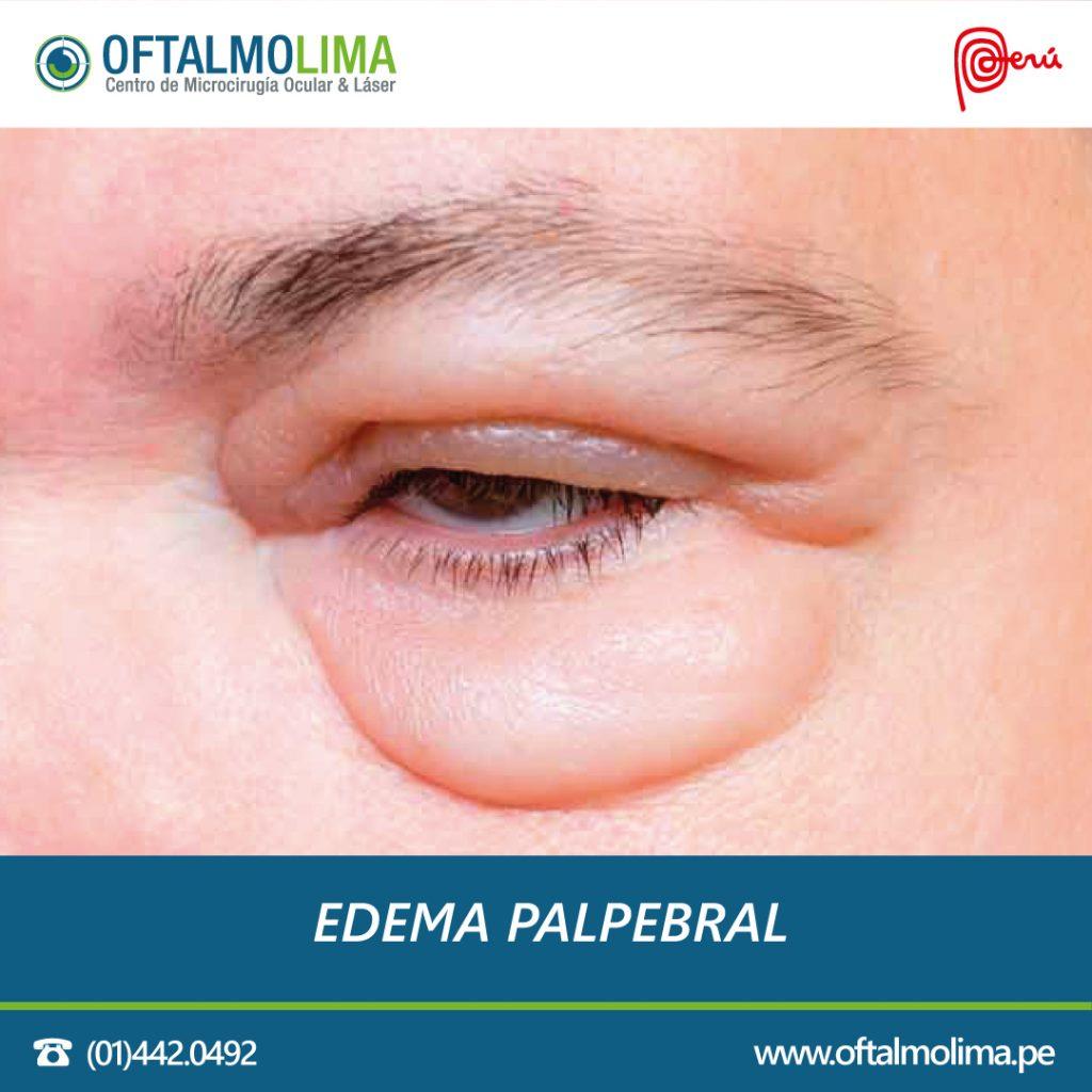 visión borrosa en un ojo infección sinusal